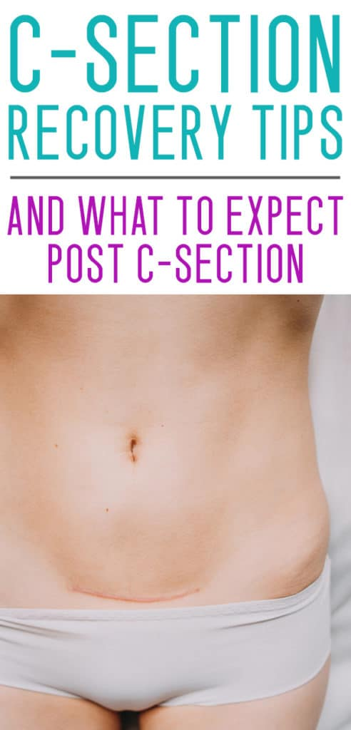 POST C SECTION RECOVERY TIPS